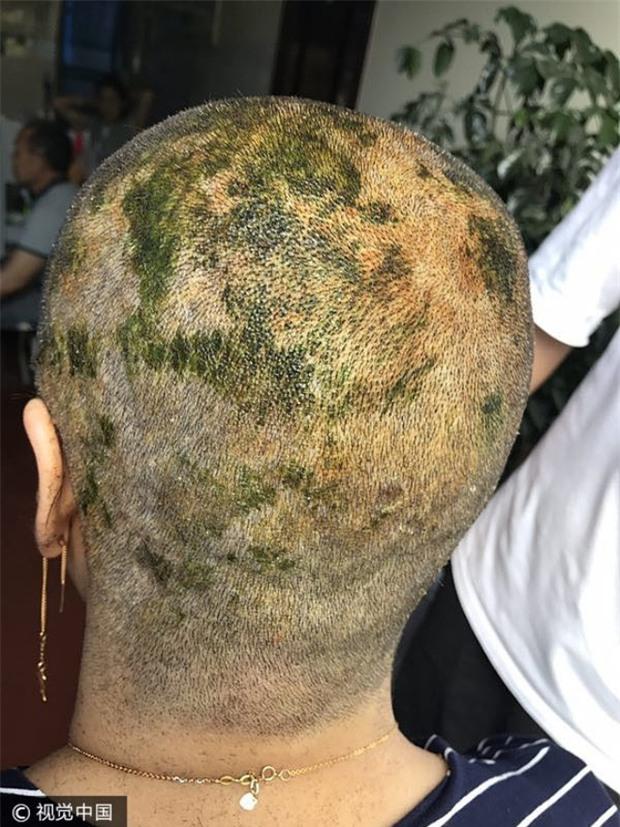 Nhuộm tóc 4 lần trong 7 tiếng để có màu xanh lá, người phụ nữ bị sốc phản vệ và cái kết không mong muốn - Ảnh 5.