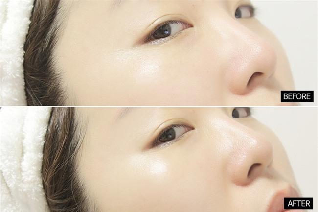 Đánh giá 1 số dòng kem mắt từ bình dân đến cao cấp phổ biến trên thị trường - Ảnh 8.