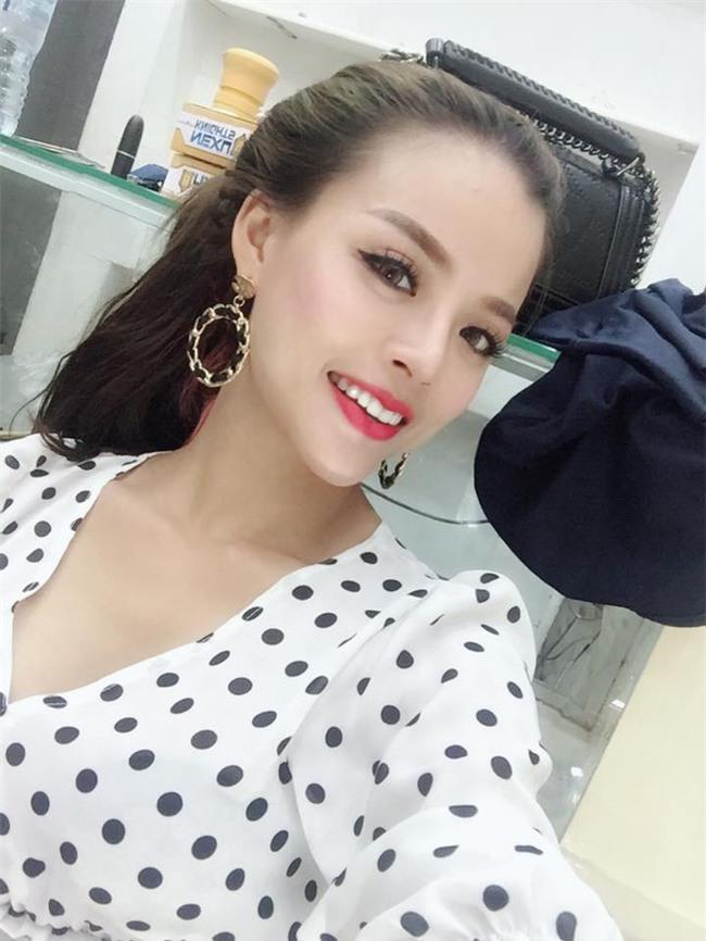 Bị bạn chồng chê xấu, mẹ trẻ Hà Nội chịu đau đớn phẫu thuật thẩm mỹ 9 lần để tự tin sánh vai bên chồng - Ảnh 3.