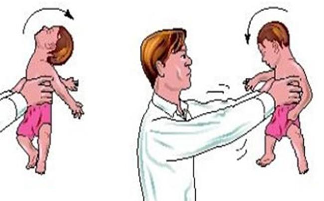 Bế trẻ không đúng cách có thể gây hội chứng rung lắc nguy hiểm