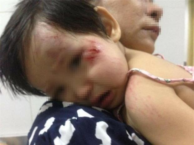 Xác định nam thanh niên tông bé gái 11 tháng tuổi trầy xước mặt rồi bỏ chạy - Ảnh 3.