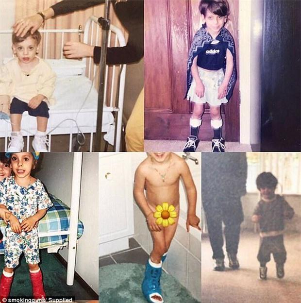 Từng bị bại não phải ngồi xe lăn cả tuổi thơ nhưng nhìn vào hình ảnh hiện tại của cô gái này, ai cũng phải tròn mắt thán phục - Ảnh 2.