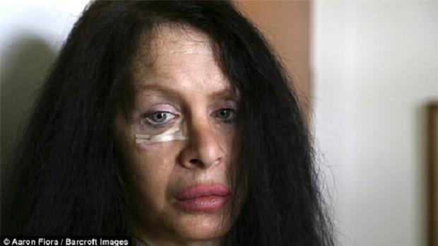 Mong muốn trẻ mãi với thời gian, nữ diễn viên tiêm vi khuẩn 3,5 triệu năm được tìm thấy trong băng vĩnh cửu vào cơ thể mình - Ảnh 1.