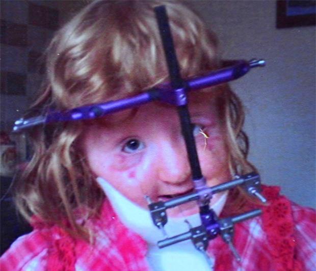 Cũng mắc hội chứng Apert, trải qua 16 cuộc phẫu thuật, cô bé này đã có khuôn mặt xinh đẹp - Ảnh 3.