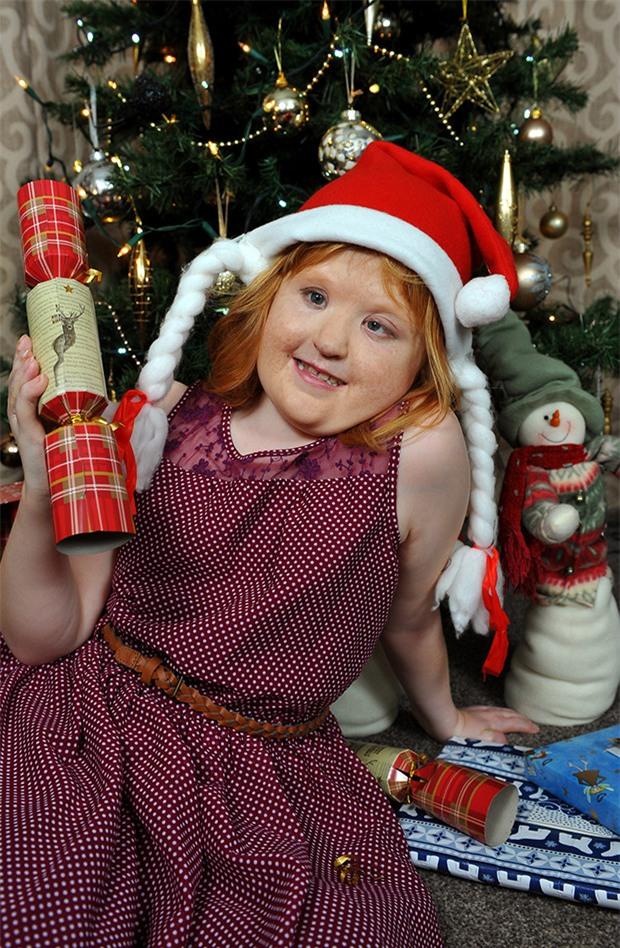 Cũng mắc hội chứng Apert, trải qua 16 cuộc phẫu thuật, cô bé này đã có khuôn mặt xinh đẹp - Ảnh 4.