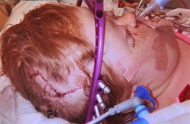 Cũng mắc hội chứng Apert, trải qua 16 cuộc phẫu thuật, cô bé này đã có khuôn mặt xinh đẹp - Ảnh 5.