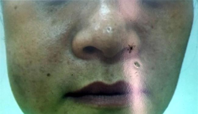"""Hai phụ nữ đi làm đẹp """"chui"""": Người suýt hỏng mũi, kẻ bị biến dạng gò má - Ảnh 3."""
