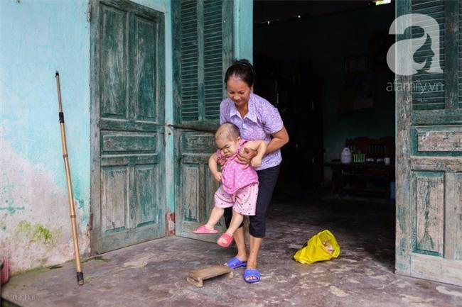 Cuộc đời cô gái gần 30 vẫn mang hình hài của đứa trẻ 2 tuổi: Lủi thủi trong nhà cả đời, không có bạn cùng - Ảnh 13.
