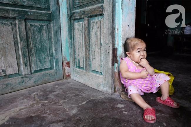 Cuộc đời cô gái gần 30 vẫn mang hình hài của đứa trẻ 2 tuổi: Lủi thủi trong nhà cả đời, không có bạn cùng - Ảnh 6.