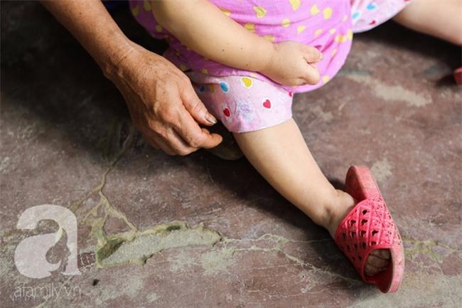 Cuộc đời cô gái gần 30 vẫn mang hình hài của đứa trẻ 2 tuổi: Lủi thủi trong nhà cả đời, không có bạn cùng - Ảnh 7.