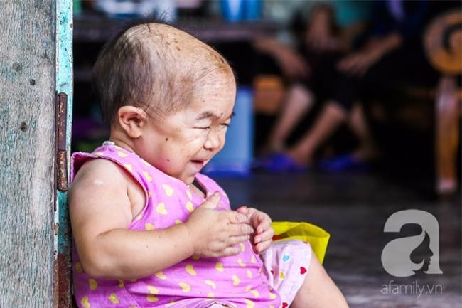 Cuộc đời cô gái gần 30 vẫn mang hình hài của đứa trẻ 2 tuổi: Lủi thủi trong nhà cả đời, không có bạn cùng - Ảnh 9.