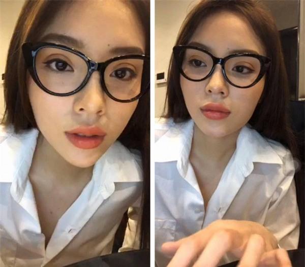 Sau đôi môi tều hot trend, hoa hậu Kỳ Duyên tiếp tục dao kéo để có mắt hai mí búp bê?-2