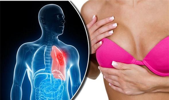 ung thư, triệu chứng ung thư, ung thư phổi, ung thư vú, ung thư tiền liệt tuyến