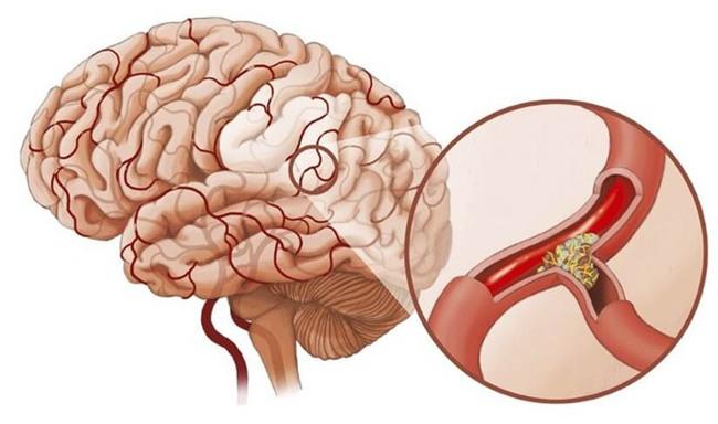 Mạch máu thông thì cơ thể khỏe: GS nổi tiếng khuyên bạn 5 điều nên làm để tránh tử vong - Ảnh 1.