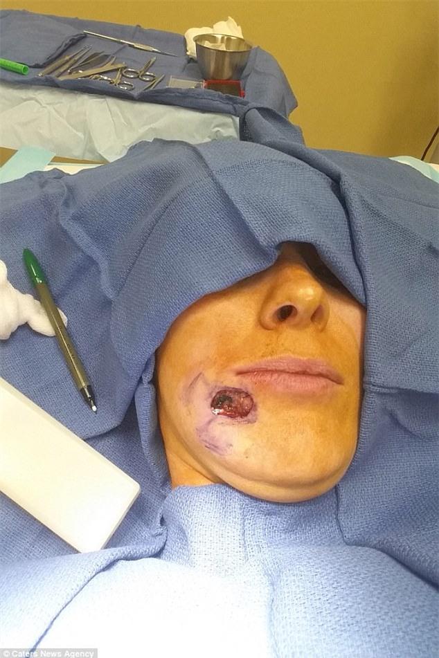 Tưởng là mụn đầu đen, người phụ nữ đã bỏ qua để rồi bị một lỗ hổng to tướng trên khuôn mặt - Ảnh 1.