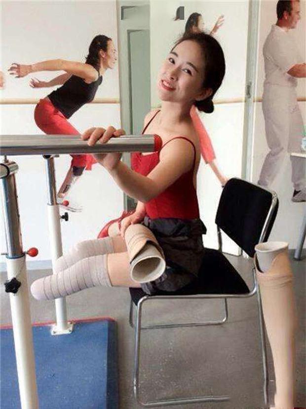 Cuộc đời đầy bão giông của vũ công xinh đẹp: Mất con, mất cả đôi chân rồi còn bị chồng bỏ rơi-9