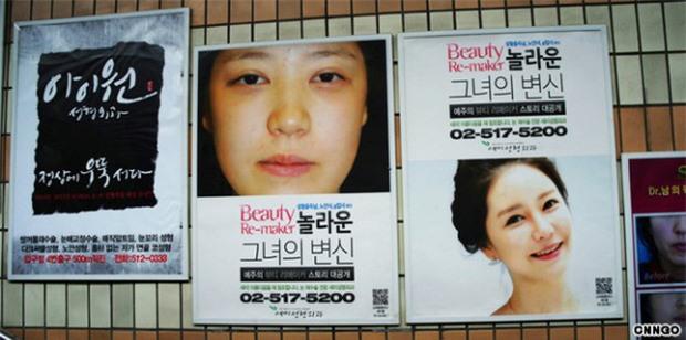 Sang Hàn Quốc thẩm mỹ, 3 nữ nhân mặt sưng, môi thâm bị chặn ở sân bay vì dung nhan khác xa ảnh hộ chiếu - Ảnh 2.