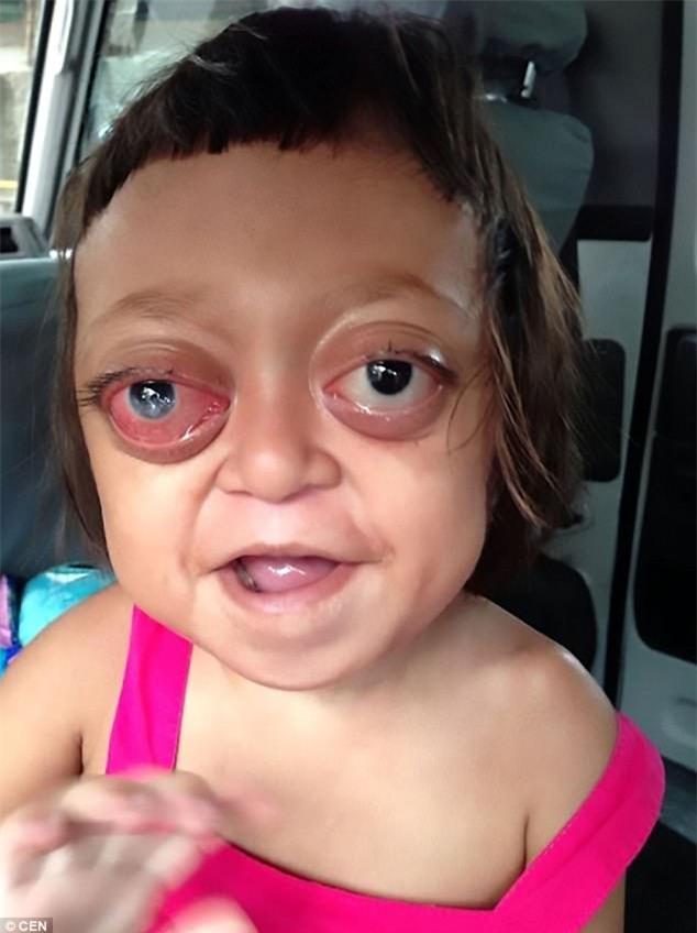 Bé gái mắc bệnh không thể ngủ bị mẹ bán cho đám ma cô, ngày ngày chịu đòn để đi ăn xin - Ảnh 1.