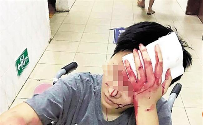 Phàn nàn về dịch vụ giao hàng, thực khách Trung Quốc bị hành hung chảy máu đầu - Ảnh 1.