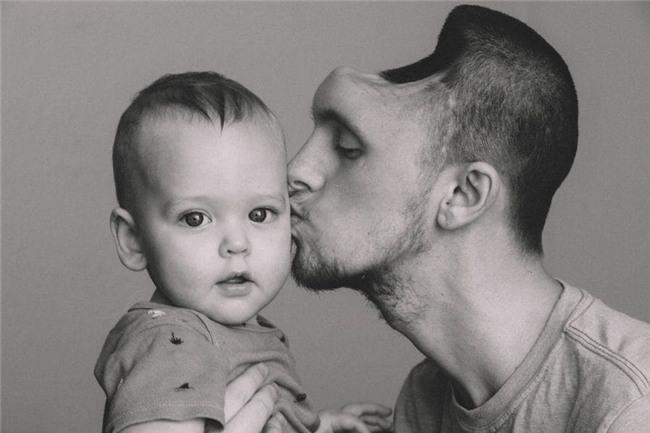 Nghiện nước tăng lực, người đàn ông mất hẳn nửa bộ não và suýt không giữ được mạng để gặp con đầu lòng - Ảnh 4.