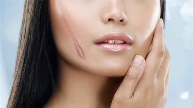 Điểm danh những loại sẹo mụn xấu xí làm chị em đau khổ và cách trị chuẩn khỏi chỉnh-2