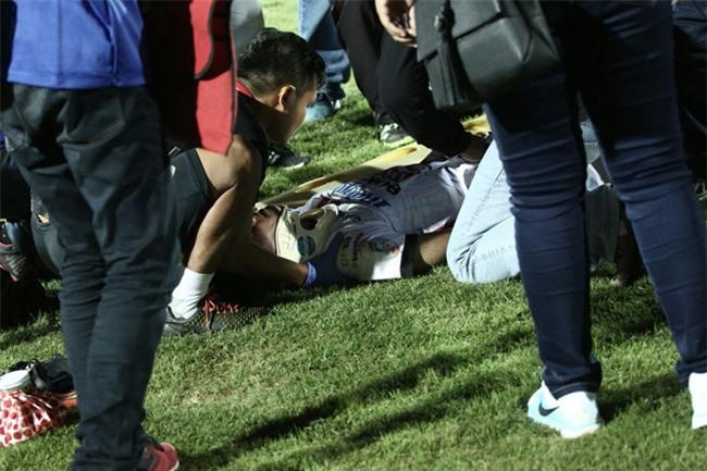 Cau thu U19 Indonesia lo ngai gay xuong co sau vu loan da hinh anh 1