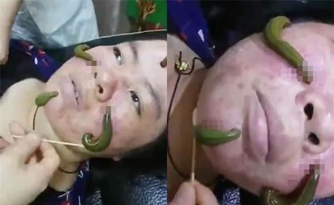 Phương pháp trị mụn chắc không bạn gái nào dám thử: Dùng đỉa hút sạch mụn trên gương mặt - Ảnh 2.