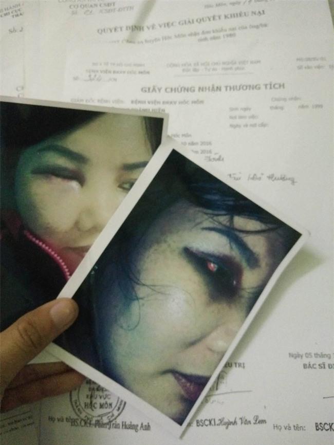 Bị người yêu của chồng kéo đến nhà đánh bầm mặt, chảy máu đầu, người phụ nữ hơn 1 năm đi kiện - Ảnh 3.