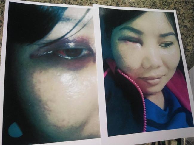 Bị người yêu của chồng kéo đến nhà đánh bầm mặt, chảy máu đầu, người phụ nữ hơn 1 năm đi kiện - Ảnh 5.