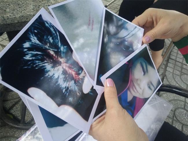 Bị người yêu của chồng kéo đến nhà đánh bầm mặt, chảy máu đầu, người phụ nữ hơn 1 năm đi kiện - Ảnh 9.