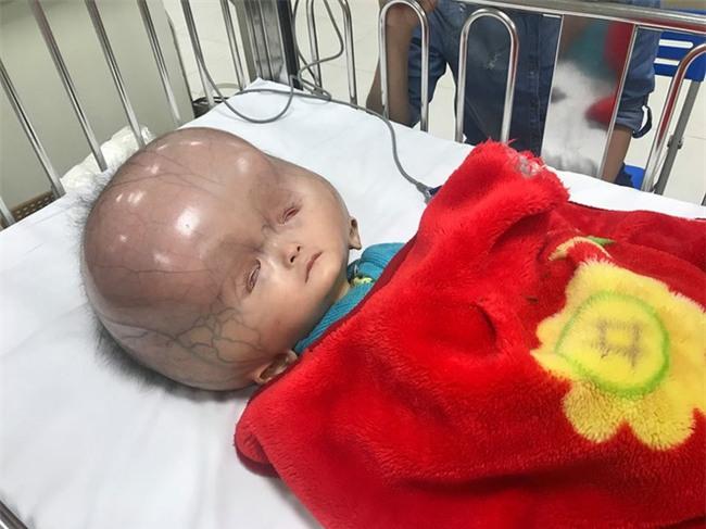 Mẹ của bé trai sinh ra có đầu to như quả bóng: Chồng và gia đình chồng đều bỏ mẹ con tôi - Ảnh 2.