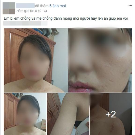 Hà Nội: Từ chối nộp hết tiền kiếm được hàng tháng cho mẹ chồng, người phụ nữ bị nhà chồng đánh thâm tím khắp người - Ảnh 1.