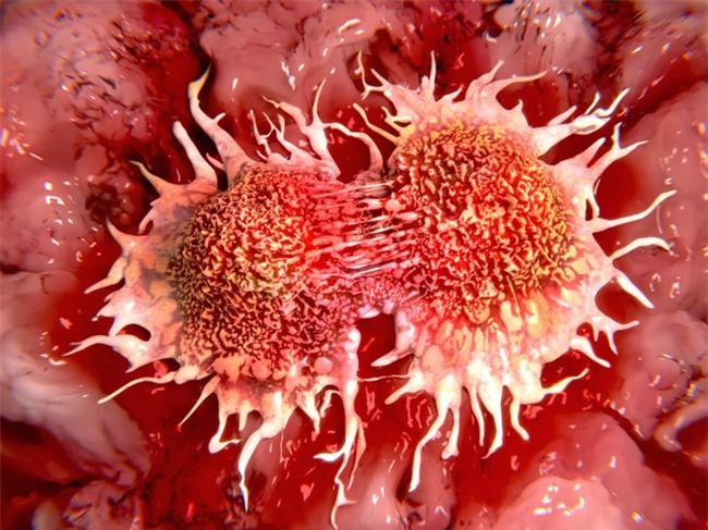 Phó giám đốc bệnh viện ung bướu chỉ rõ nguyên nhân ngày càng nhiều người trẻ mắc ung thư - Ảnh 1.