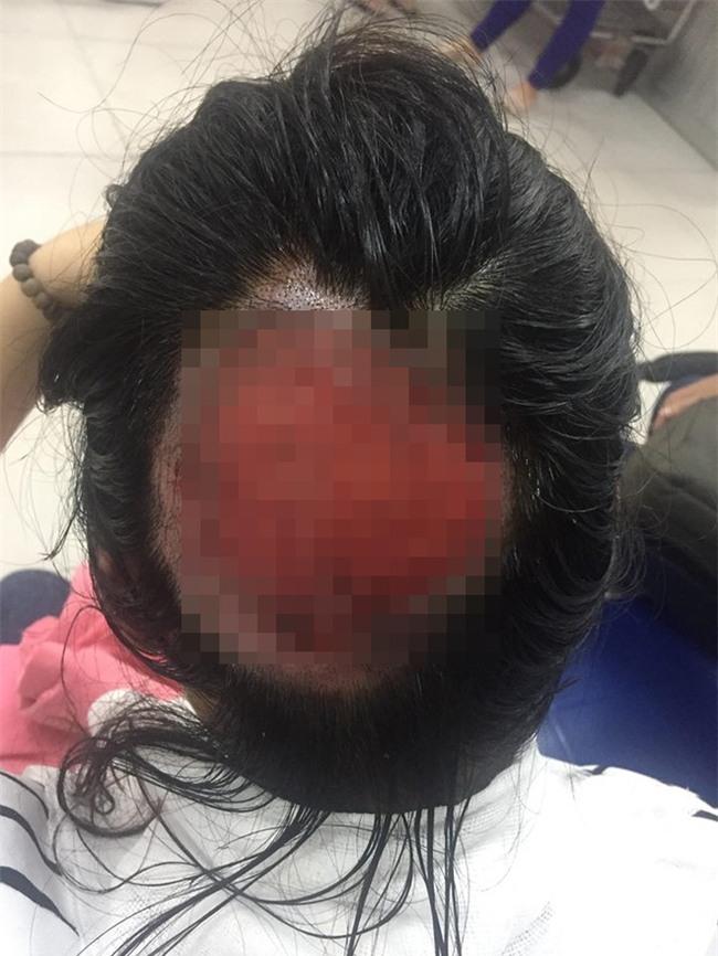 Tai nạn nghiêm khi uốn tóc: Tóc cuốn vào ống dẫn nhiệt, nữ bác sĩ bỏng sâu, tróc gần toàn bộ da đầu phía sau - Ảnh 1.