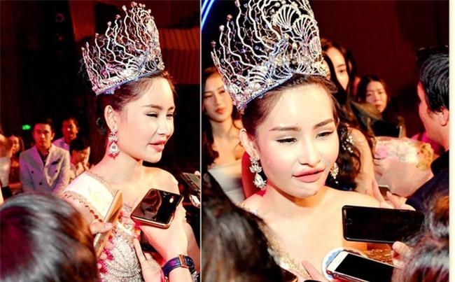 Tân Hoa hậu Đại dương 2017 thừa nhận từng phẫu thuật thẩm mỹ