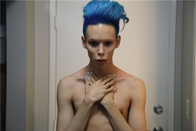 Chàng trai tính phẫu thuật cắt bỏ bộ phận sinh dục để trở thành người ngoài hành tinh - Ảnh 1.