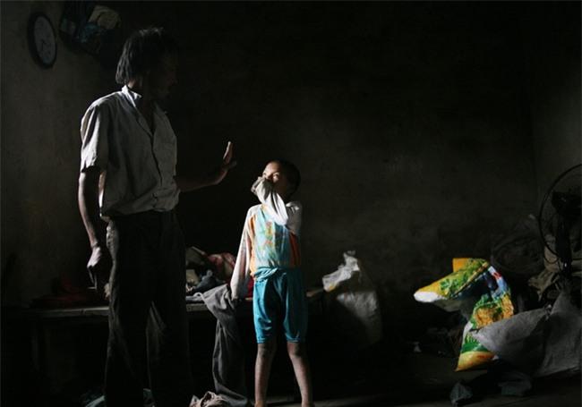 Hà Nội: Tận cùng nỗi đau, sự khốn khổ của một gia đình có nhiều người tâm thần - Ảnh 7.