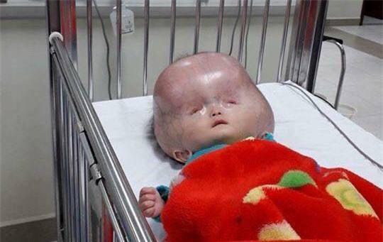 Người mẹ bị tố không đồng ý đưa con bị não úng thủy sang Singapore chữa trị lên tiếng