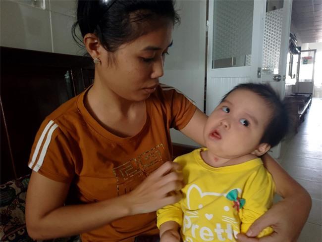 Xót thương bé gái hơn 1 tuổi bị côn trùng đốt khiến tay chân co quắp, teo não không thể nhận thức - Ảnh 1.