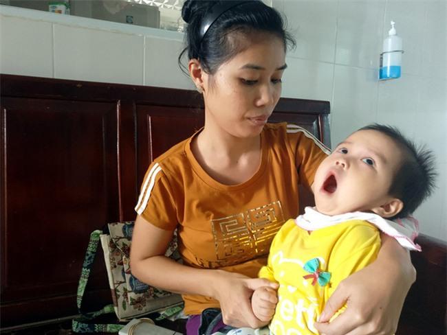 Xót thương bé gái hơn 1 tuổi bị côn trùng đốt khiến tay chân co quắp, teo não không thể nhận thức - Ảnh 2.