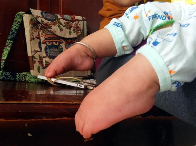 Xót thương bé gái hơn 1 tuổi bị côn trùng đốt khiến tay chân co quắp, teo não không thể nhận thức - Ảnh 3.