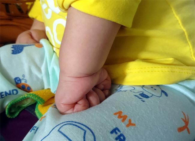 Xót thương bé gái hơn 1 tuổi bị côn trùng đốt khiến tay chân co quắp, teo não không thể nhận thức - Ảnh 4.
