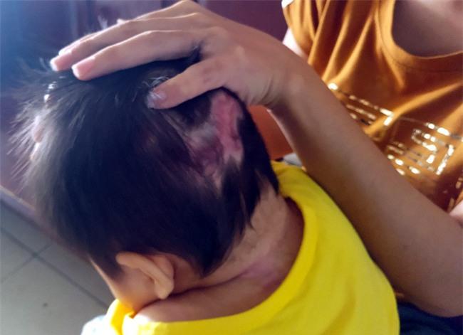 Xót thương bé gái hơn 1 tuổi bị côn trùng đốt khiến tay chân co quắp, teo não không thể nhận thức - Ảnh 6.