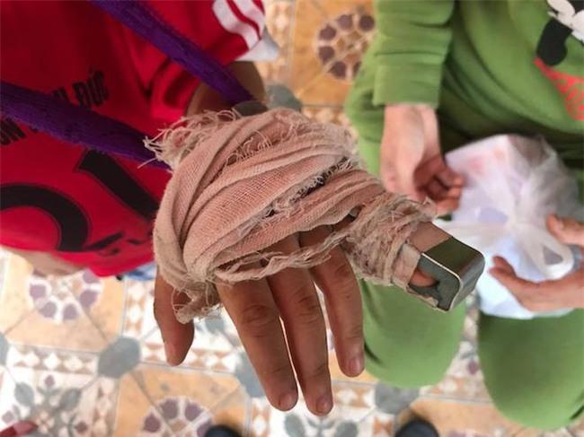 Công an vào cuộc làm rõ vụ cô giáo bị tố đánh gãy ngón tay bé trai 5 tuổi
