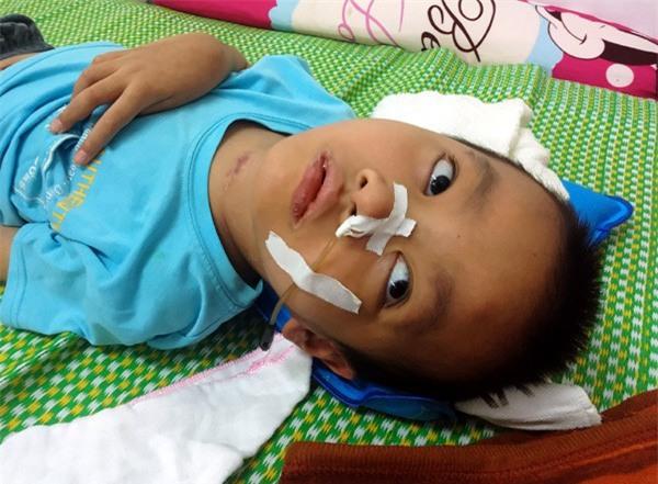 Sau trận sốt cao, bé trai khỏe mạnh thành người tàn phế, bố mẹ khốn khó vì gia cảnh ngặt nghèo - Ảnh 2.
