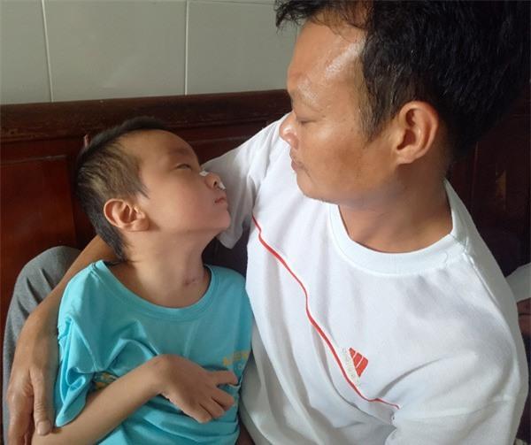 Sau trận sốt cao, bé trai khỏe mạnh thành người tàn phế, bố mẹ khốn khó vì gia cảnh ngặt nghèo - Ảnh 6.