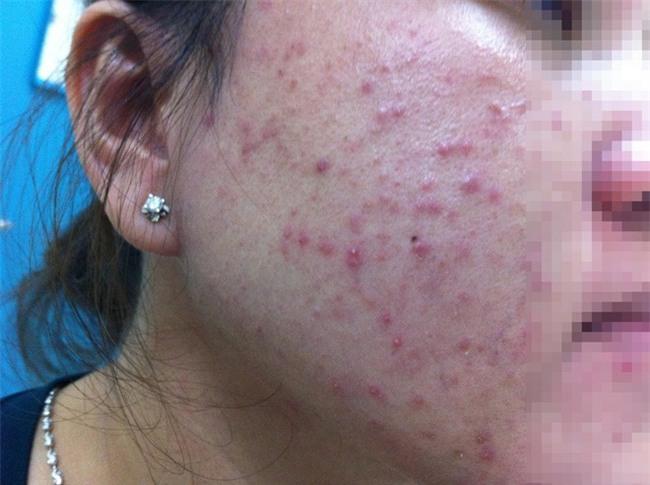 TP.HCM: Bôi mỹ phẩm tùy tiện lên da sau khi bắn laser, mặt người phụ nữ sưng vù, đỏ lừ như máu - Ảnh 2.