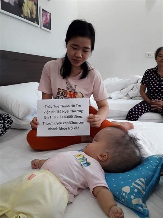 Đã quyên góp được gần 500 triệu đồng chuẩn bị cho ngày mai đưa bé gái đầu to đi Singapore chữa bệnh - Ảnh 1.