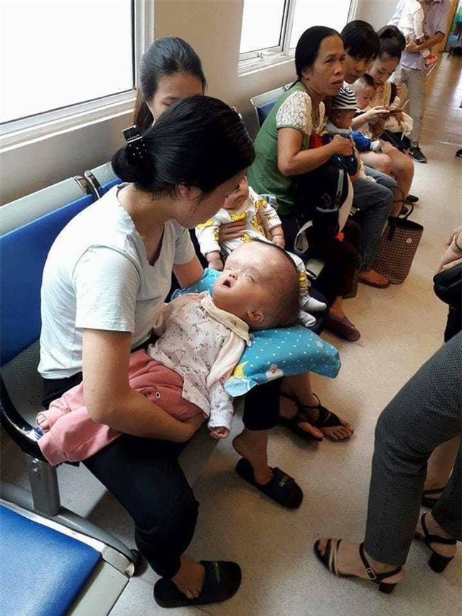 Đã quyên góp được gần 500 triệu đồng chuẩn bị cho ngày mai đưa bé gái đầu to đi Singapore chữa bệnh - Ảnh 3.