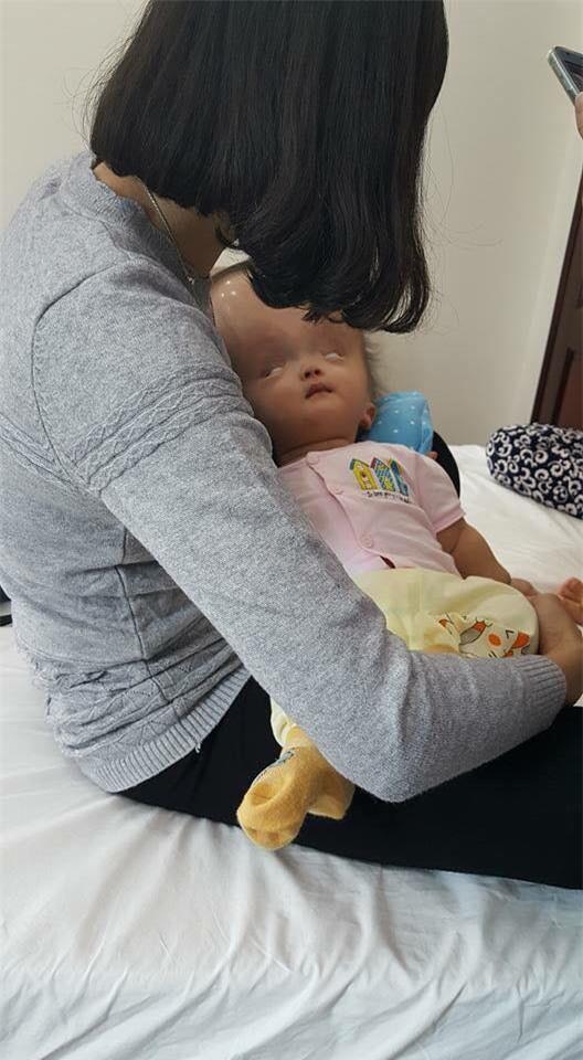 Đã quyên góp được gần 500 triệu đồng chuẩn bị cho ngày mai đưa bé gái đầu to đi Singapore chữa bệnh - Ảnh 4.